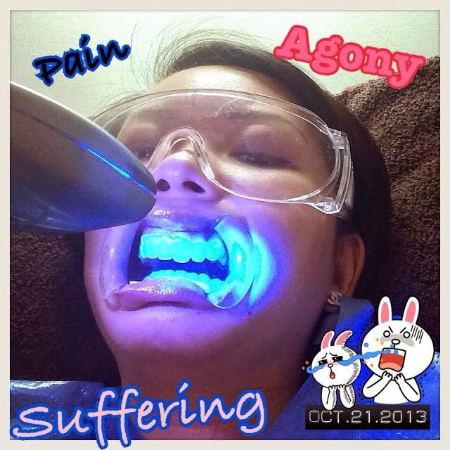 Fabulous Smile Salon - Journey to Whiter Teeth