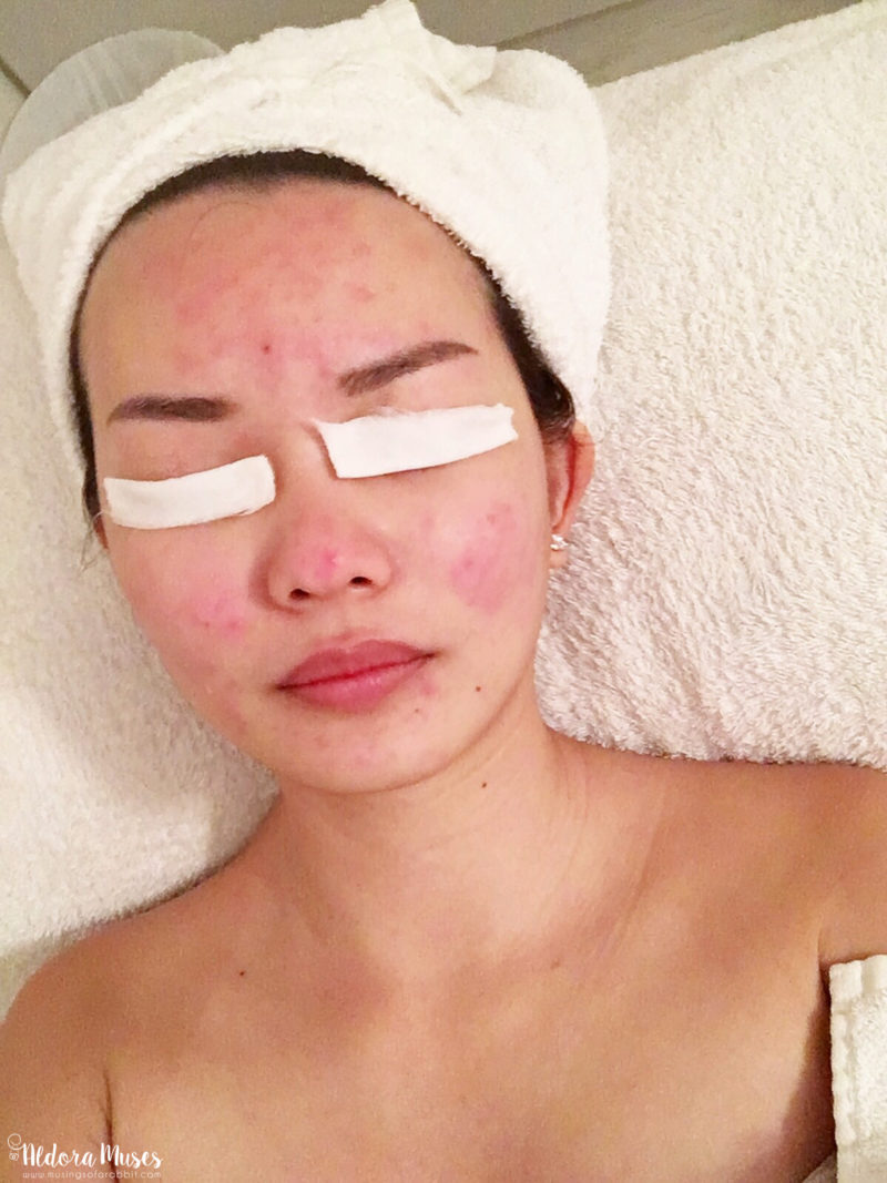 Salicylic Peel Facial - SkinLab The Medical Spa
