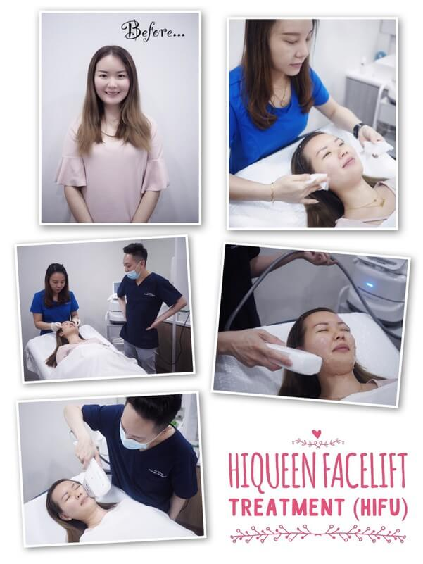 HiQueen Facelift Treatment (HIFU)Review