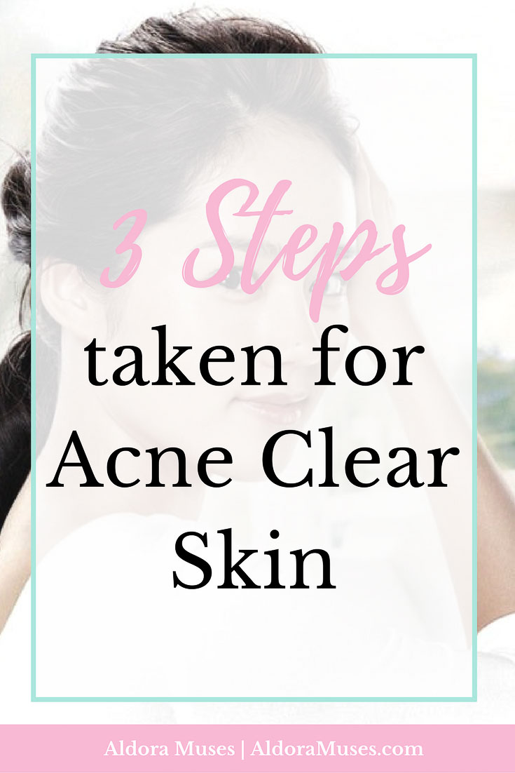 Beauty, Clear Skin, Acne, Anti-Acne, Get Rid of Acne, Natural Skincare, Skincare, Beautician, Facial, Essential Oils